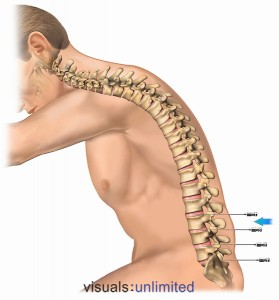 Lateral male and spine with discogram needles at L2-3, L3-4, L4-