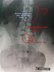 stupid-spine